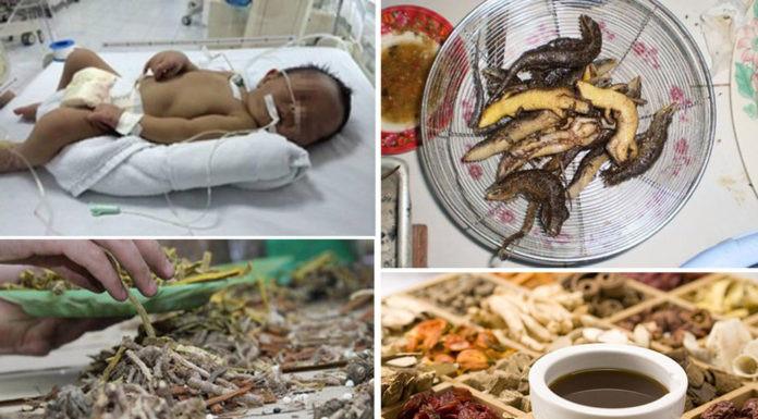 4 'mẹo dân gian' chữa bệnh cho trẻ, mẹ Việt tuyệt đối phải tránh xa
