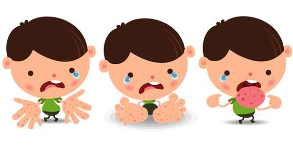 Phòng ngừa các bệnh thường gặp cho trẻ