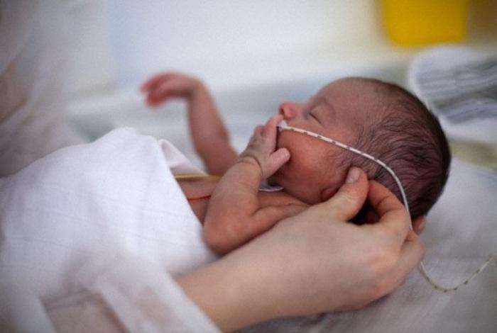 cách chăm sóc trẻ sinh non