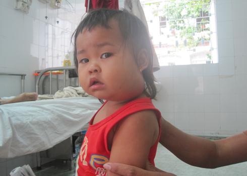 Bệnh quai bị ở trẻ nhỏ và những biến chứng nguy hiểm nếu không điều trị kịp thời