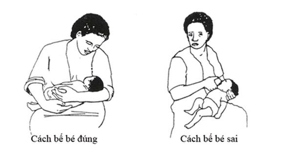Mẹo điều trị nứt cổ gà cho mẹ đơn giản mà hiệu quả.