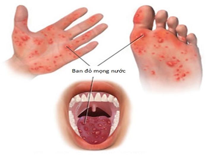 dấu hiệu cho biết bệnh tay chân miệng ở trẻ