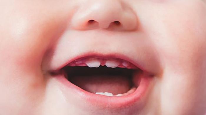 Làm thế nào khi trẻ bị sốt mọc răng