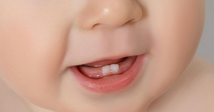 trẻ mấy tháng mọc răng và dấu hiệu nhận biết