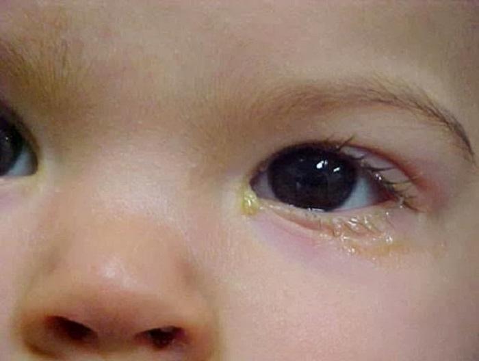 điều trị nhiễm trùng sơ sinh
